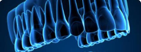 Digital 3D X-Rays