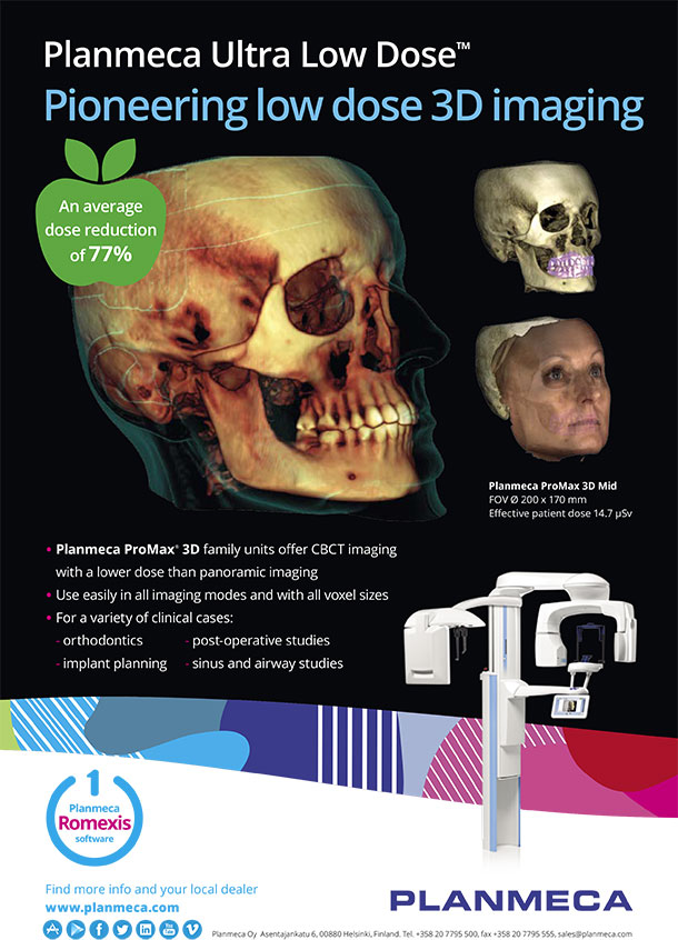 Planmeca Ultra Low Dose 3D Imaging in Katy, TX - Katy Orthodontics