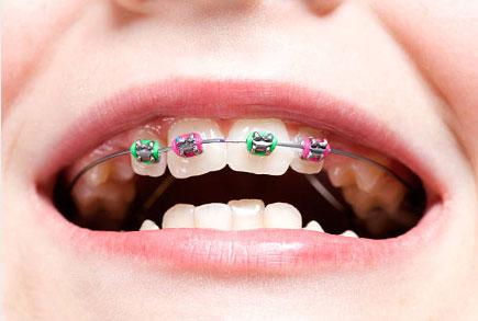 Early Orthodontic Treatment in Katy, TX - Katy Orthodontics