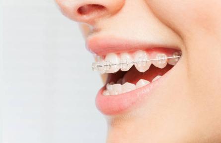 Ceramic Braces in Katy, TX - Katy Orthodontics