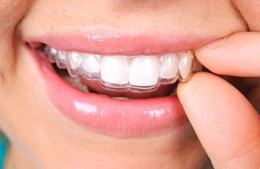 Invisalign Clear Aligners in Katy, TX - Katy Orthodontics